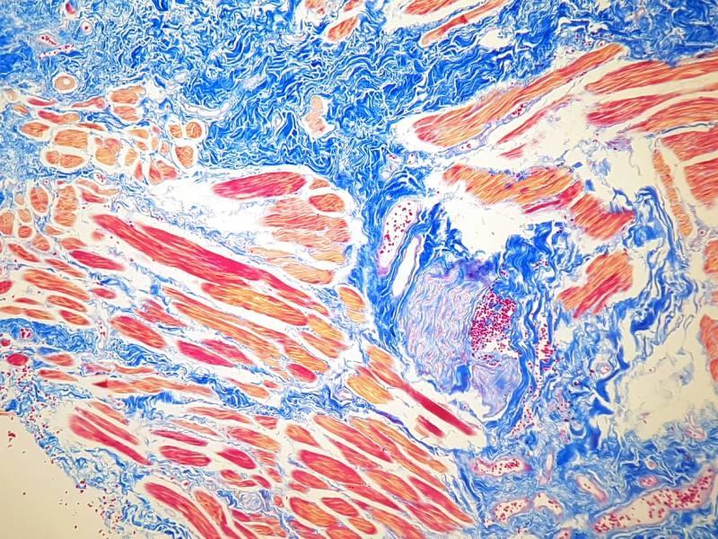 azan mallory staining protocol