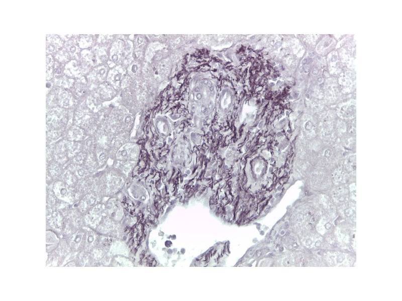 Acid Orcein acc. Shikata - Tiziano Stainer
